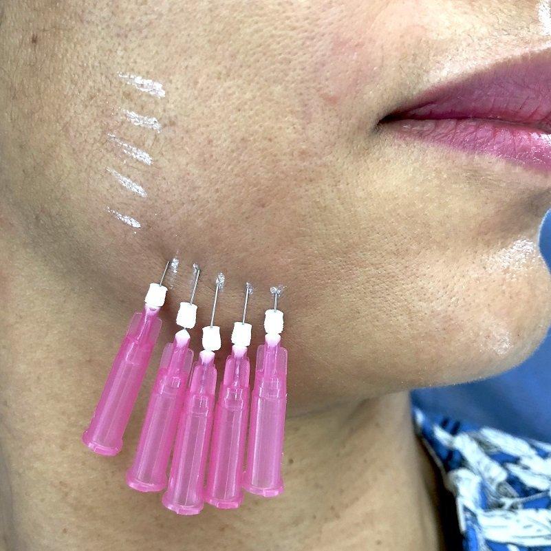Hilos de Colágeno faciales o corporales