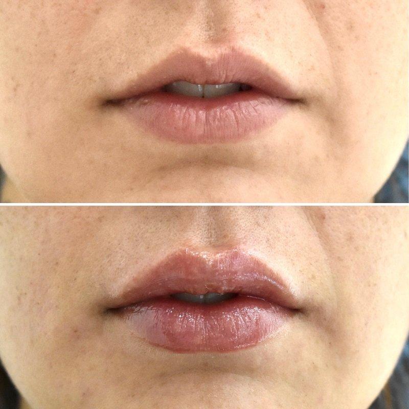 Perfilamiento de labios Ácido Hialurónico